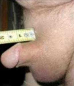 No es lo mismo un pene pequeño que un micro pene