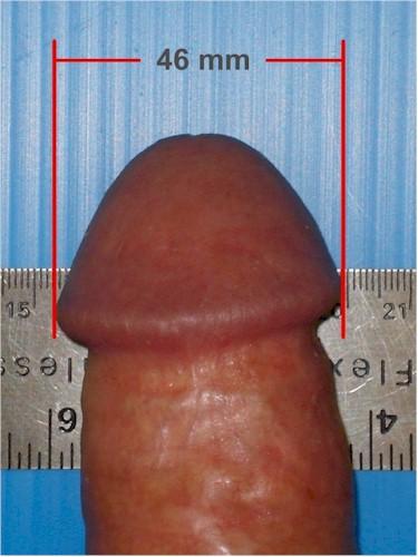 Ejemplos de cómo tomarse la medida del glande. Estado flácido y erecto (No es mi pene)