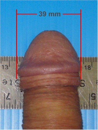 tlc-flaccid-size-example